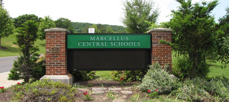 Marcellus sign